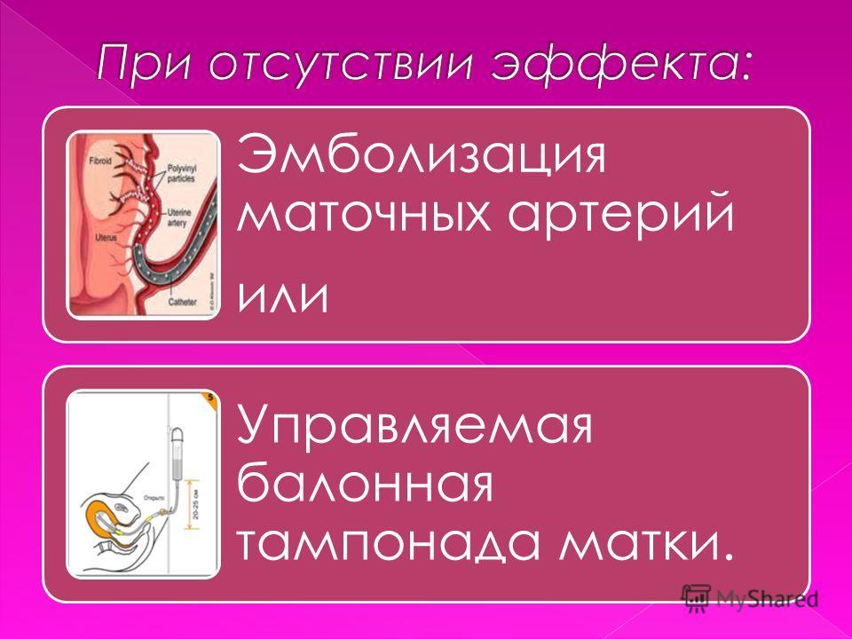 Эмболизация маточных артерий или Управляемая балонная тампонада матки.