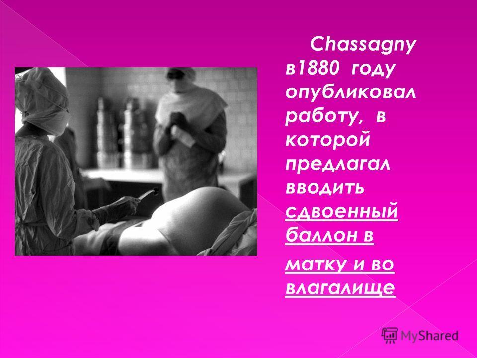 Chassagny в1880 году опубликовал работу, в которой предлагал вводить сдвоенный баллон в матку и во влагалище
