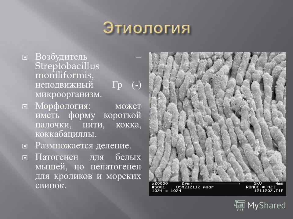 Возбудитель – Streptobacillus moniliformis, неподвижный Гр (-) микроорганизм. Морфология : может иметь форму короткой палочки, нити, кокка, коккабациллы. Размножается деление. Патогенен для белых мышей, но непатогенен для кроликов и морских свинок.