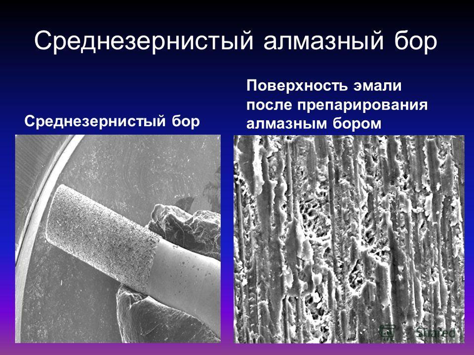 Среднезернистый алмазный бор Среднезернистый бор Поверхность эмали после препарирования алмазным бором