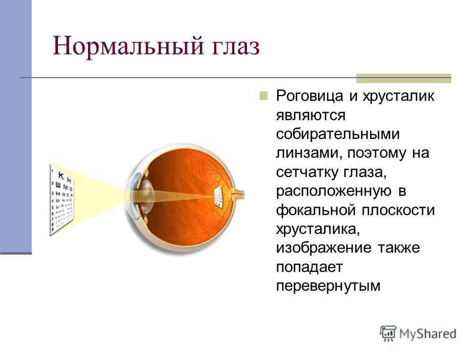 Нормальный глаз Роговица и хрусталик являются собирательными линзами, поэтому на сетчатку глаза, расположенную в фокальной плоскости хрусталика, изображение также попадает перевернутым