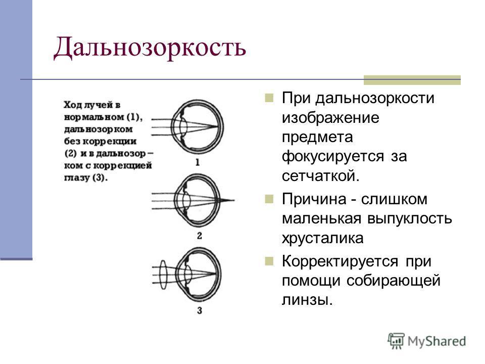 Дальнозоркость При дальнозоркости изображение предмета фокусируется за сетчаткой. Причина - слишком маленькая выпуклость хрусталика Корректируется при помощи собирающей линзы.