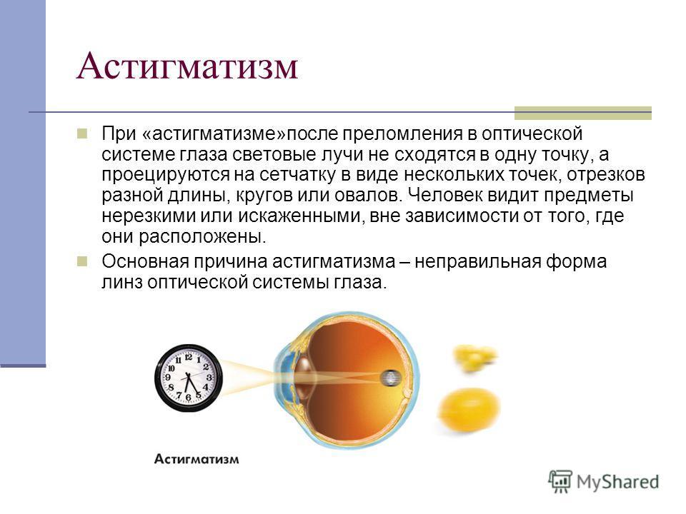 Астигматизм При «астигматизме»после преломления в оптической системе глаза световые лучи не сходятся в одну точку, а проецируются на сетчатку в виде нескольких точек, отрезков разной длины, кругов или овалов. Человек видит предметы нерезкими или иска