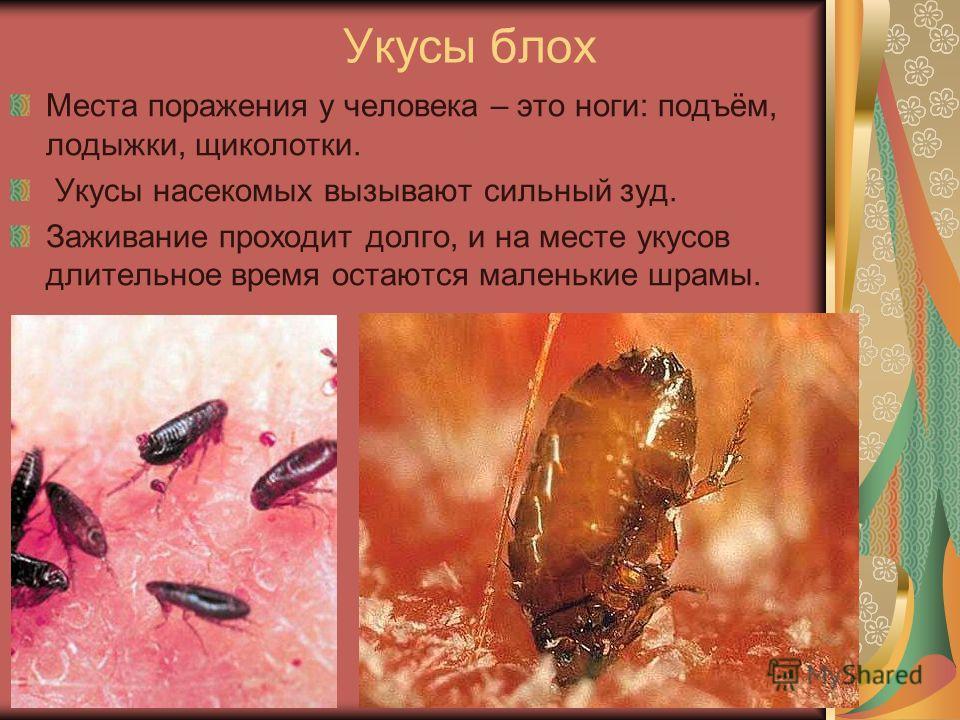 Укусы блох Места поражения у человека – это ноги: подъём, лодыжки, щиколотки. Укусы насекомых вызывают сильный зуд. Заживание проходит долго, и на месте укусов длительное время остаются маленькие шрамы.