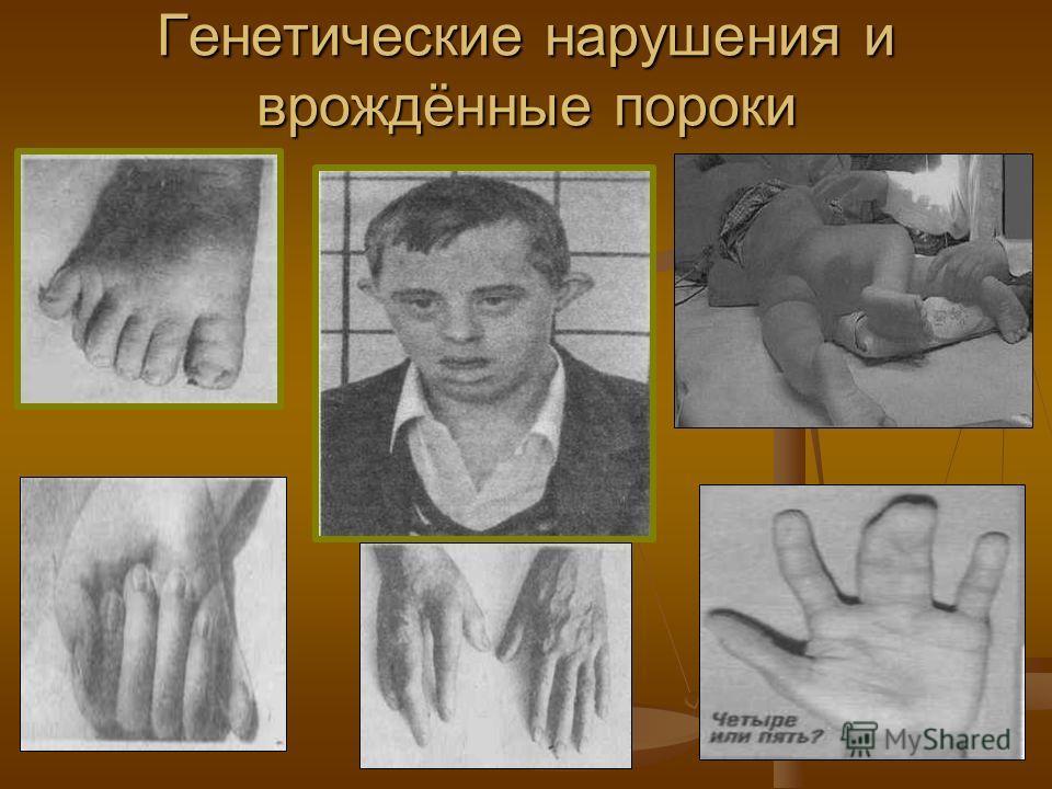 Генетические нарушения и врождённые пороки