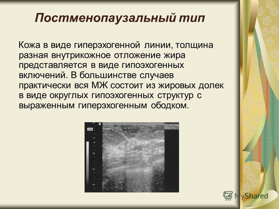Постменопаузальный тип Кожа в виде гиперэхогенной линии, толщина разная внутрикожное отложение жира представляется в виде гипоэхогенных включений. В большинстве случаев практически вся МЖ состоит из жировых долек в виде округлых гипоэхогенных структу