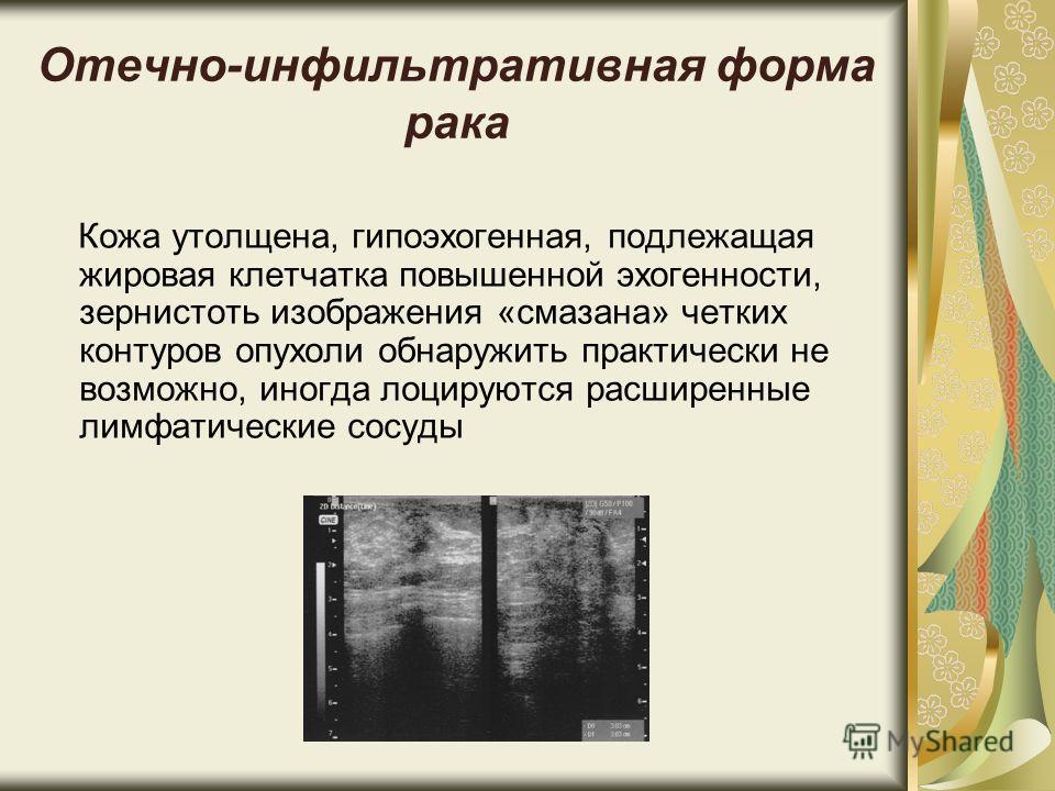 Отечно-инфильтративная форма рака Кожа утолщена, гипоэхогенная, подлежащая жировая клетчатка повышенной эхогенности, зернистоть изображения «смазана» четких контуров опухоли обнаружить практически не возможно, иногда лоцируются расширенные лимфатичес