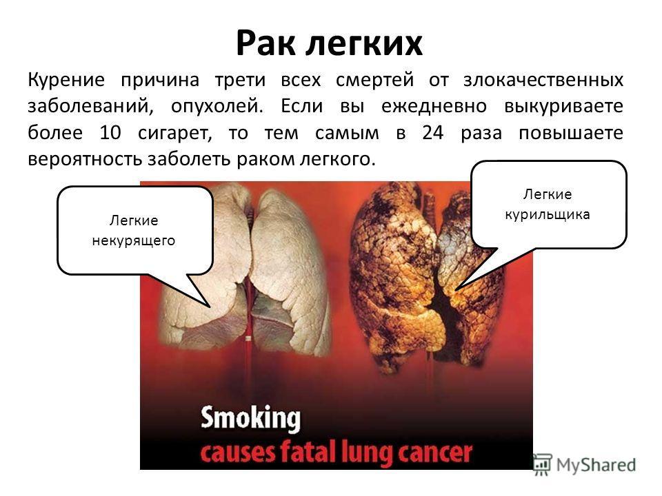 Рак легких Курение причина трети всех смертей от злокачественных заболеваний, опухолей. Если вы ежедневно выкуриваете более 10 сигарет, то тем самым в 24 раза повышаете вероятность заболеть раком легкого. Легкие курильщика Легкие некурящего