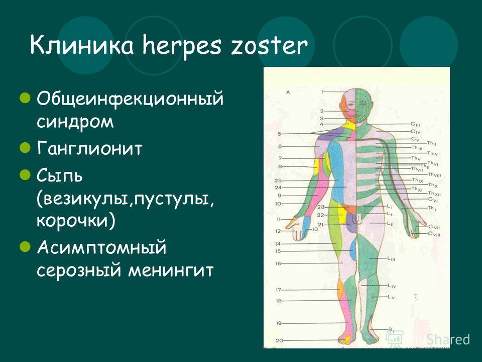 Клиника herpes zoster Общеинфекционный синдром Ганглионит Сыпь (везикулы,пустулы, корочки) Асимптомный серозный менингит