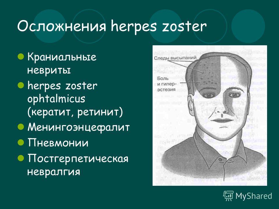 Осложнения herpes zoster Краниальные невриты herpes zoster ophtalmicus (кератит, ретинит) Менингоэнцефалит Пневмонии Постгерпетическая невралгия