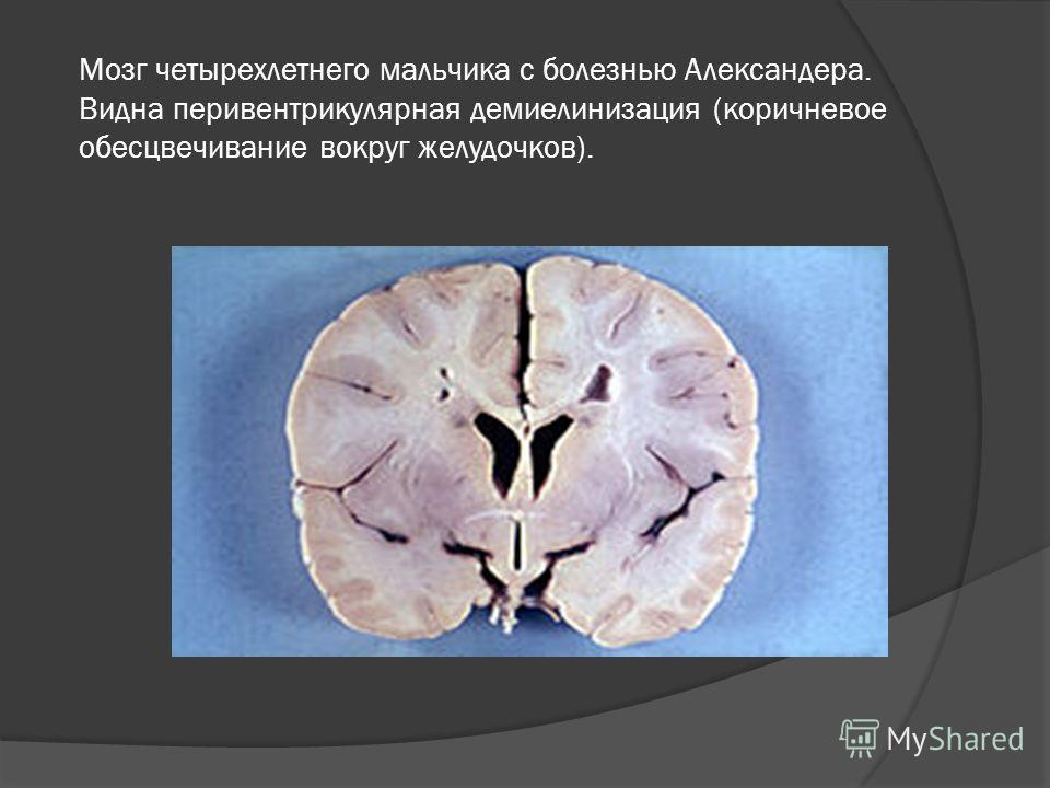 Мозг четырехлетнего мальчика с болезнью Александера. Видна перивентрикулярная демиелинизация (коричневое обесцвечивание вокруг желудочков).