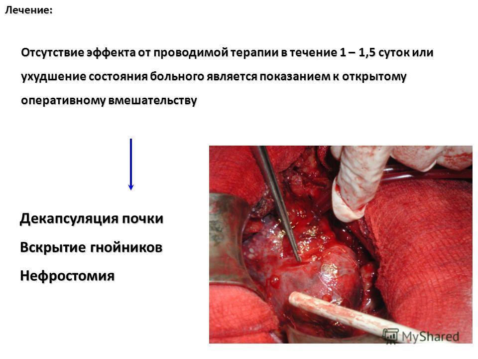 Нефростомия фото