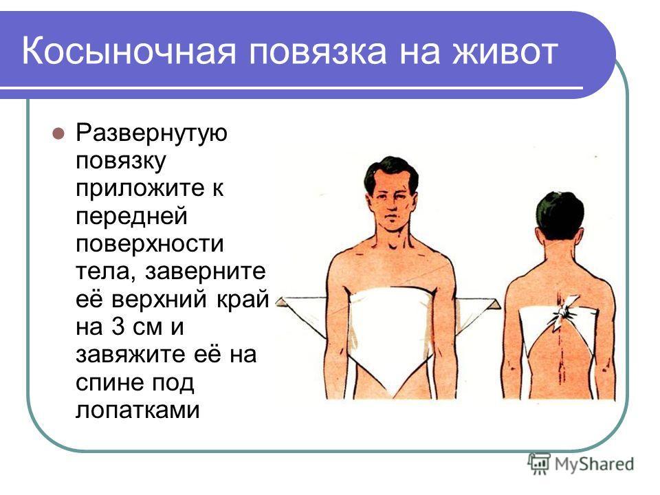 Косыночная повязка на живот Развернутую повязку приложите к передней поверхности тела, заверните её верхний край на 3 см и завяжите её на спине под лопатками