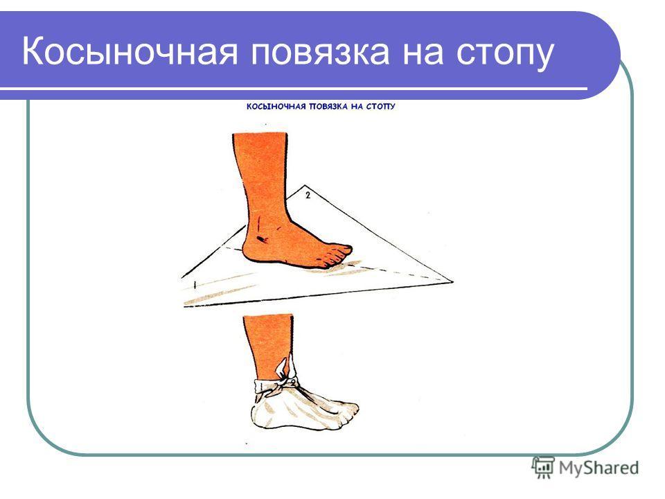 Повязка Косыночная фото