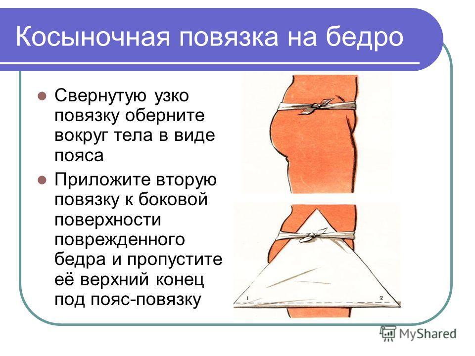 Косыночная повязка на бедро Свернутую узко повязку оберните вокруг тела в виде пояса Приложите вторую повязку к боковой поверхности поврежденного бедра и пропустите её верхний конец под пояс-повязку