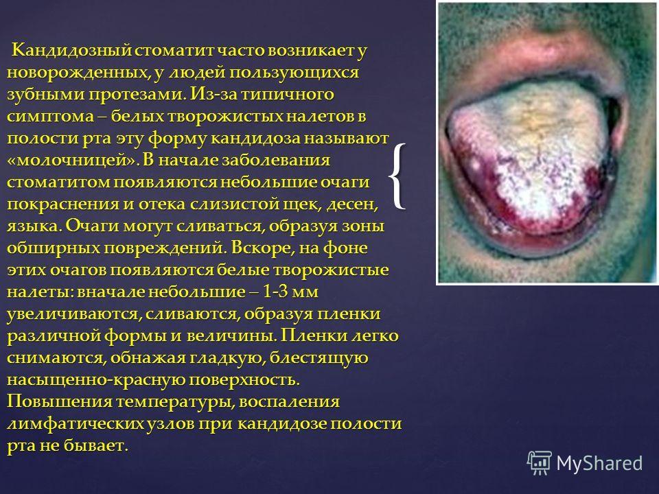 { Кандидозный стоматит часто возникает у новорожденных, у людей пользующихся зубными протезами. Из-за типичного симптома – белых творожистых налетов в полости рта эту форму кандидоза называют «молочницей». В начале заболевания стоматитом появляются н