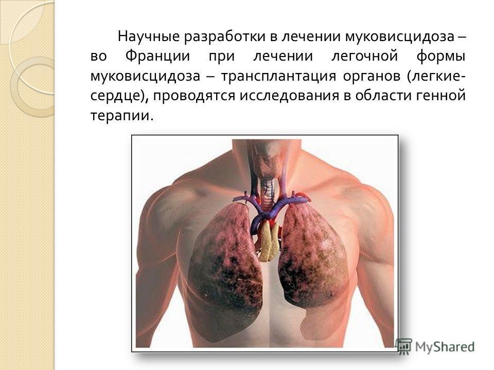 Научные разработки в лечении муковисцидоза – во Франции при лечении легочной формы муковисцидоза – трансплантация органов ( легкие - сердце ), проводятся исследования в области генной терапии.