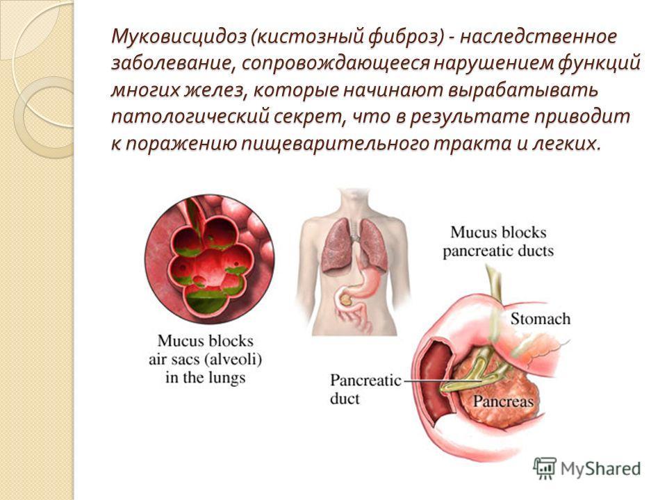Муковисцидоз ( кистозный фиброз ) - наследственное заболевание, сопровождающееся нарушением функций многих желез, которые начинают вырабатывать патологический секрет, что в результате приводит к поражению пищеварительного тракта и легких.
