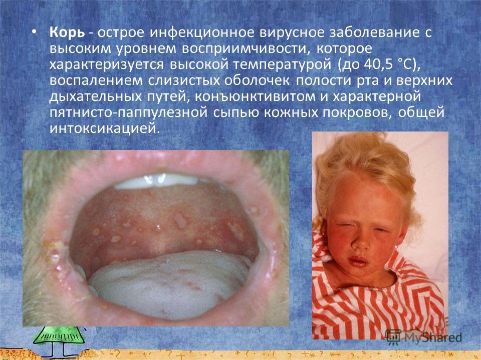 Корь - острое инфекционное вирусное заболевание с высоким уровнем восприимчивости, которое характеризуется высокой температурой (до 40,5 °C), воспалением слизистых оболочек полости рта и верхних дыхательных путей, конъюнктивитом и характерной пятнист
