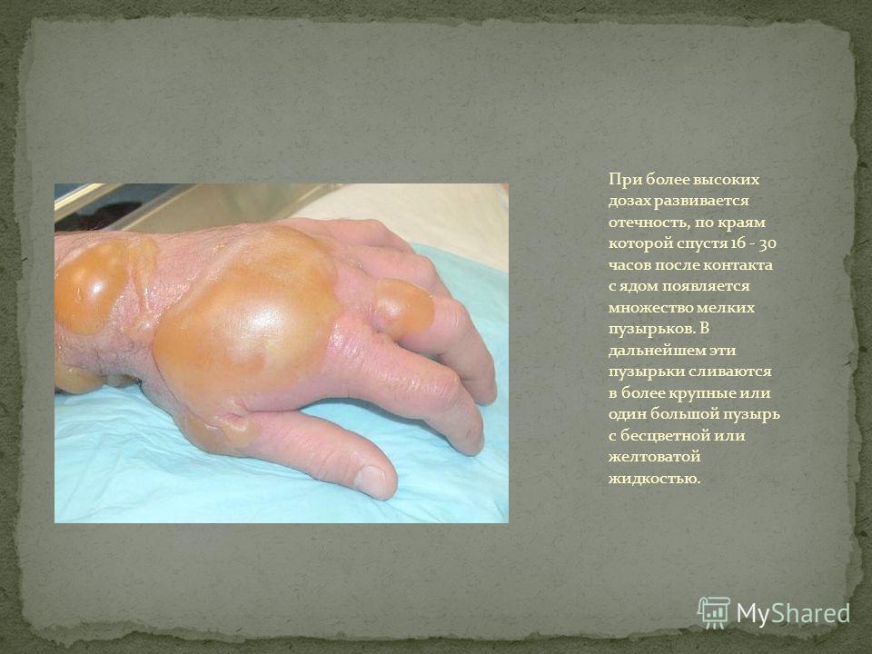При более высоких дозах развивается отечность, по краям которой спустя 16 - 30 часов после контакта с ядом появляется множество мелких пузырьков. В дальнейшем эти пузырьки сливаются в более крупные или один большой пузырь с бесцветной или желтоватой