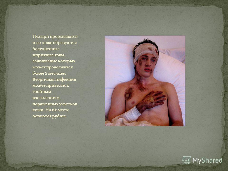 Пузыри прорываются и на коже образуются болезненные ипритные язвы, заживление которых может продолжатся более 2 месяцев. Вторичная инфекция может привести к гнойным воспалениям пораженных участков кожи. На их месте остаются рубцы.