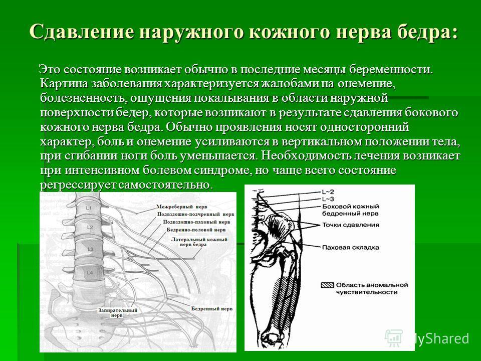Сдавление наружного кожного нерва бедра: Это состояние возникает обычно в последние месяцы беременности. Картина заболевания характеризуется жалобами на онемение, болезненность, ощущения покалывания в области наружной поверхности бедер, которые возни
