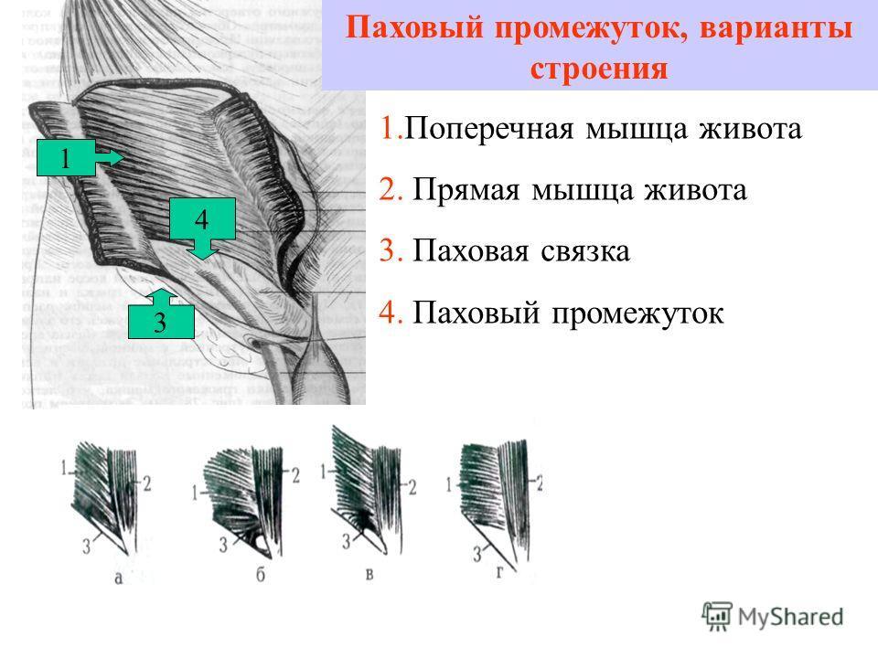 Паховый промежуток, варианты строения 1 3 1.Поперечная мышца живота 2. Прямая мышца живота 3. Паховая связка 4. Паховый промежуток 4