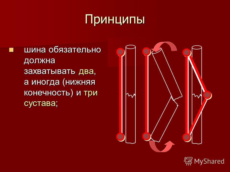 Принципы шина обязательно должна захватывать два, а иногда (нижняя конечность) и три сустава; шина обязательно должна захватывать два, а иногда (нижняя конечность) и три сустава;