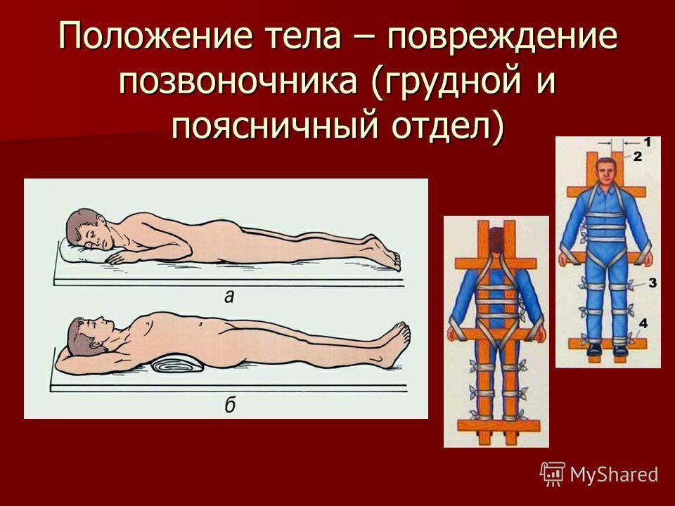 Положение тела – повреждение позвоночника (грудной и поясничный отдел)