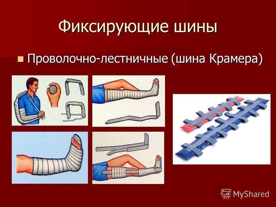 Фиксирующие шины Проволочно-лестничные (шина Крамера) Проволочно-лестничные (шина Крамера)