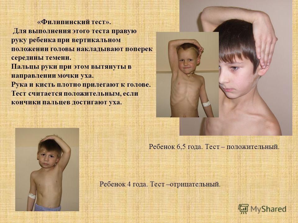 «Филипинский тест». Для выполнения этого теста правую руку ребенка при вертикальном положении головы накладывают поперек середины темени. Пальцы руки при этом вытянуты в направлении мочки уха. Рука и кисть плотно прилегают к голове. Тест считается по