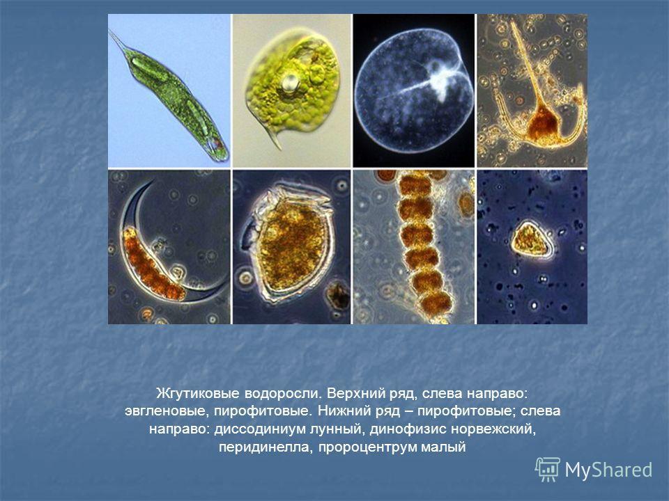 Жгутиковые водоросли. Верхний ряд, слева направо: эвгленовые, пирофитовые. Нижний ряд – пирофитовые; слева направо: диссодиниум лунный, динофизис норвежский, перидинелла, пророцентрум малый