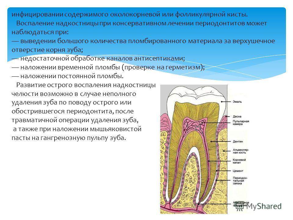 инфицировании содержимого околокорневой или фолликулярной кисты. Воспаление надкостницы при консервативном лечении периодонтитов может наблюдаться при: выведении большого количества пломбированного материала за верхушечное отверстие корня зуба; недос