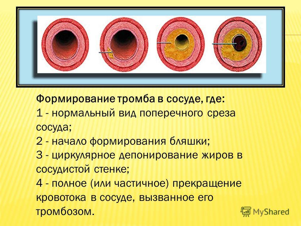 Формирование тромба в сосуде, где: 1 - нормальный вид поперечного среза сосуда; 2 - начало формирования бляшки; 3 - циркулярное депонирование жиров в сосудистой стенке; 4 - полное (или частичное) прекращение кровотока в сосуде, вызванное его тромбозо