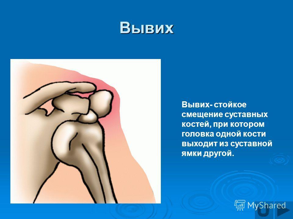 Вывих Вывих- стойкое смещение суставных костей, при котором головка одной кости выходит из суставной ямки другой.