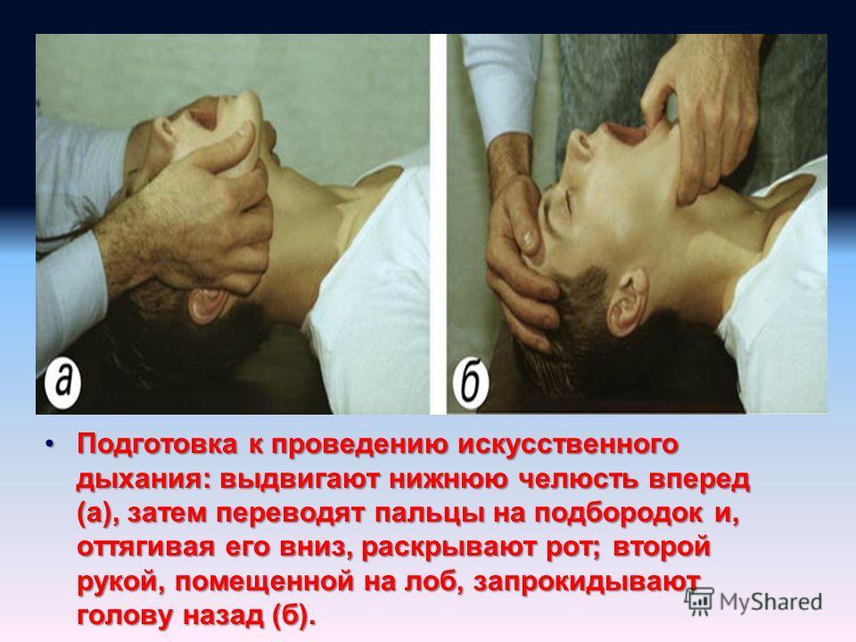 Подготовка к проведению искусственного дыхания: выдвигают нижнюю челюсть вперед (а), затем переводят пальцы на подбородок и, оттягивая его вниз, раскрывают рот; второй рукой, помещенной на лоб, запрокидывают голову назад (б).Подготовка к проведению и