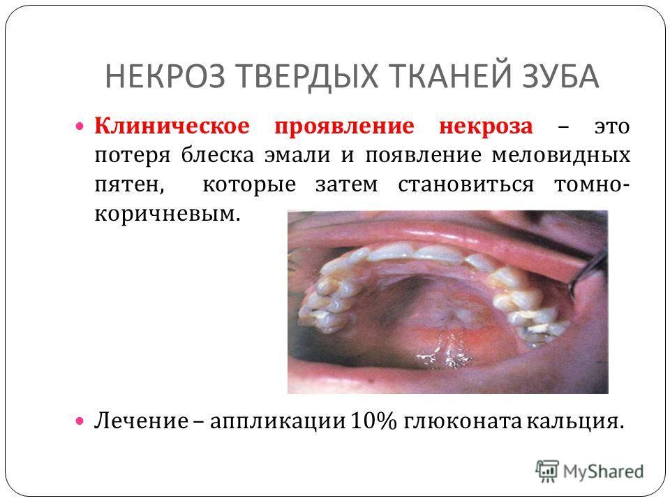 НЕКРОЗ ТВЕРДЫХ ТКАНЕЙ ЗУБА Клиническое проявление некроза – это потеря блеска эмали и появление меловидных пятен, которые затем становиться томно - коричневым. Лечение – аппликации 10% глюконата кальция.