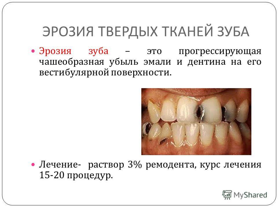 ЭРОЗИЯ ТВЕРДЫХ ТКАНЕЙ ЗУБА Эрозия зуба – это прогрессирующая чашеобразная убыль эмали и дентина на его вестибулярной поверхности. Лечение - раствор 3% ремодента, курс лечения 15-20 процедур.