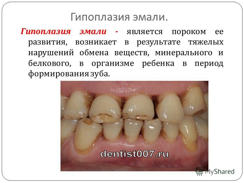 Гипоплазия эмали. Гипоплазия эмали - является пороком ее развития, возникает в результате тяжелых нарушений обмена веществ, минерального и белкового, в организме ребенка в период формирования зуба.