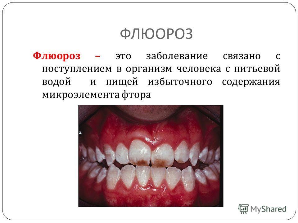 отбеливание 1 зуба