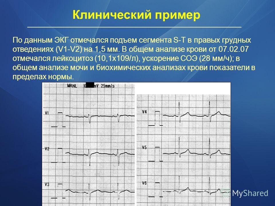 По данным ЭКГ отмечался подъем сегмента S-Т в правых грудных отведениях (V1-V2) на 1,5 мм. В общем анализе крови от 07.02.07 отмечался лейкоцитоз (10,1х109/л), ускорение СОЭ (28 мм/ч); в общем анализе мочи и биохимических анализах крови показатели в
