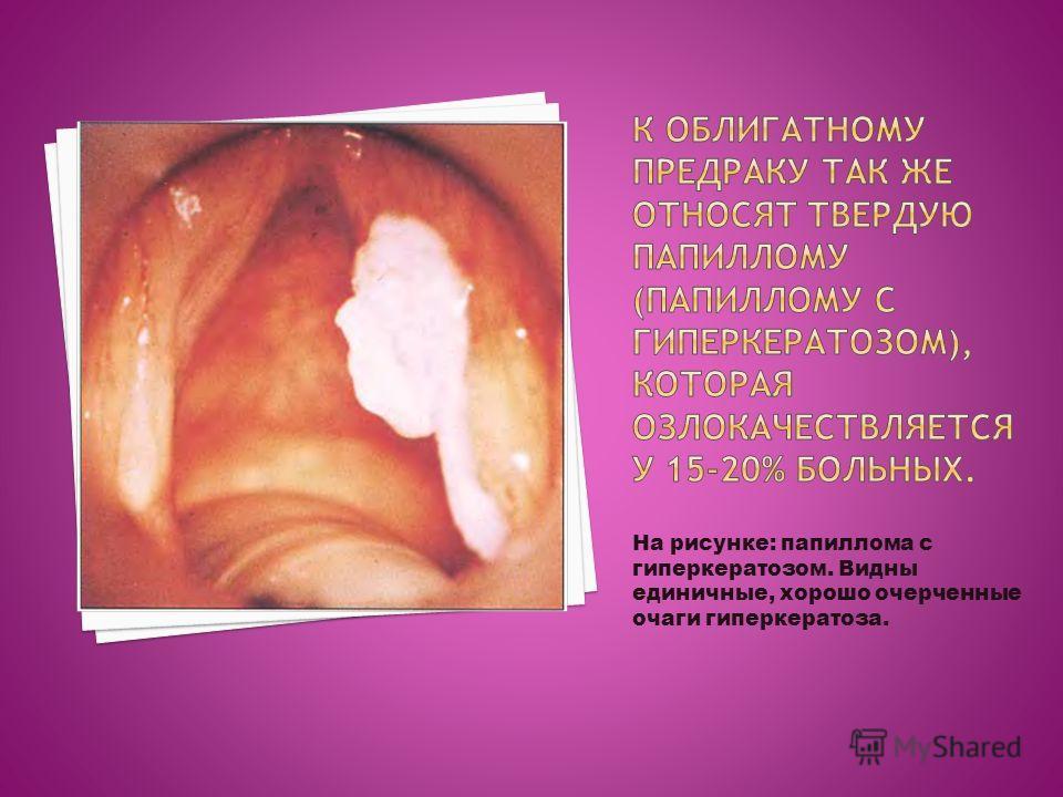 На рисунке: папиллома с гиперкератозом. Видны единичные, хорошо очерченные очаги гиперкератоза.