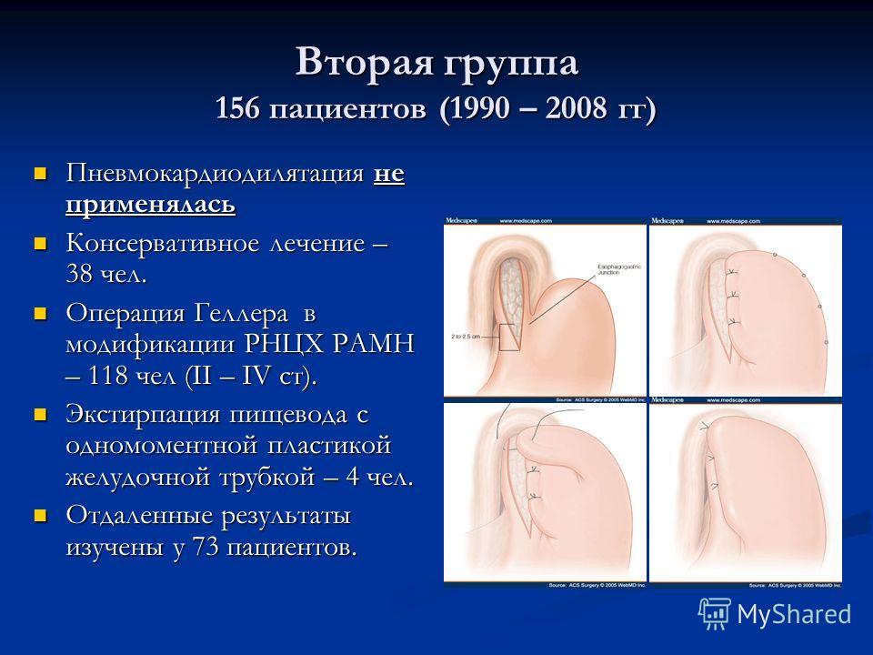 Вторая группа 156 пациентов (1990 – 2008 гг) Пневмокардиодилятация не применялась Пневмокардиодилятация не применялась Консервативное лечение – 38 чел. Консервативное лечение – 38 чел. Операция Геллера в модификации РНЦХ РАМН – 118 чел (II – IV ст).
