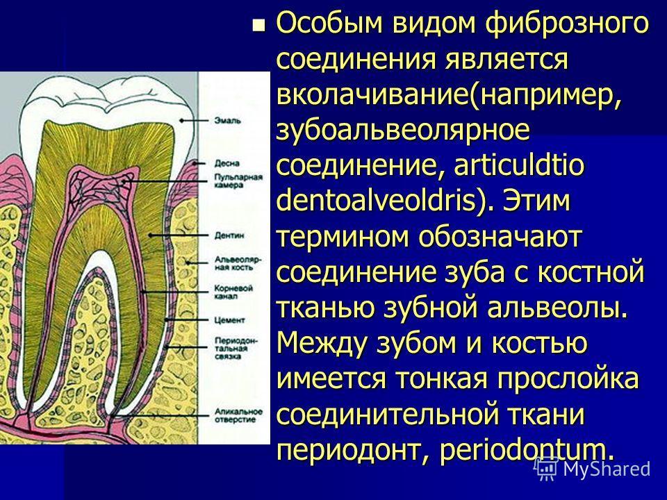 Особым видом фиброзного соединения является вколачивание(например, зубоальвеолярное соединение, articuldtio dentoalveoldris). Этим термином обозначают соединение зуба с костной тканью зубной альвеолы. Между зубом и костью имеется тонкая прослойка сое
