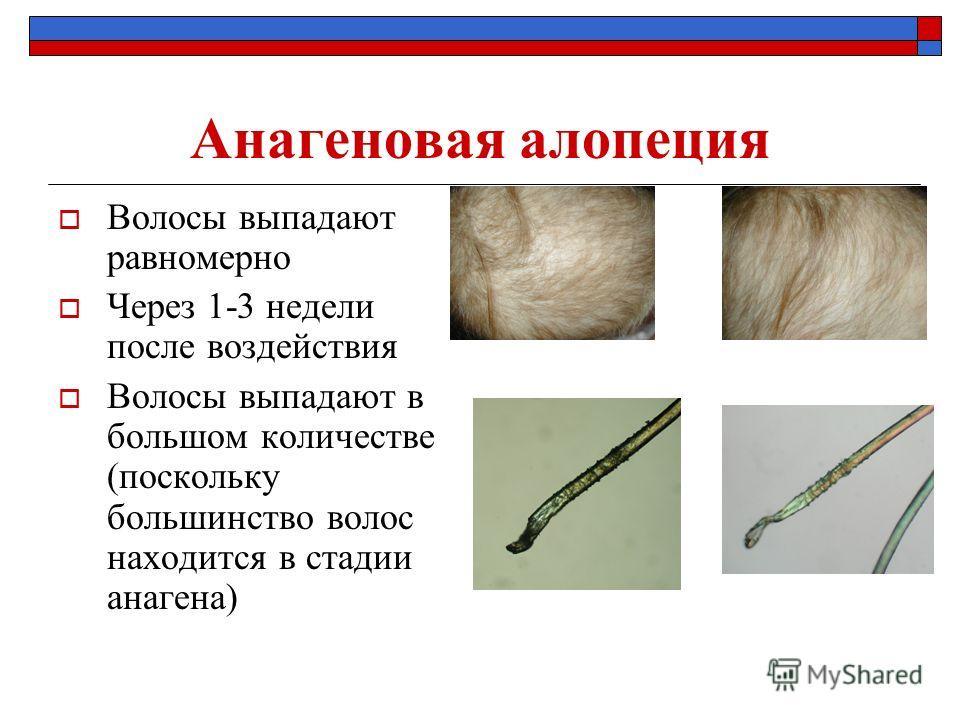 Анагеновая алопеция Волосы выпадают равномерно Через 1-3 недели после воздействия Волосы выпадают в большом количестве (поскольку большинство волос находится в стадии анагена)