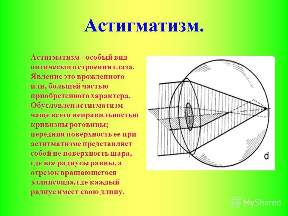 Астигматизм. Астигматизм - особый вид оптического строения глаза. Явление это врожденного или, большей частью приобретенного характера. Обусловлен астигматизм чаще всего неправильностью кривизны роговицы; передняя поверхность ее при астигматизме пред
