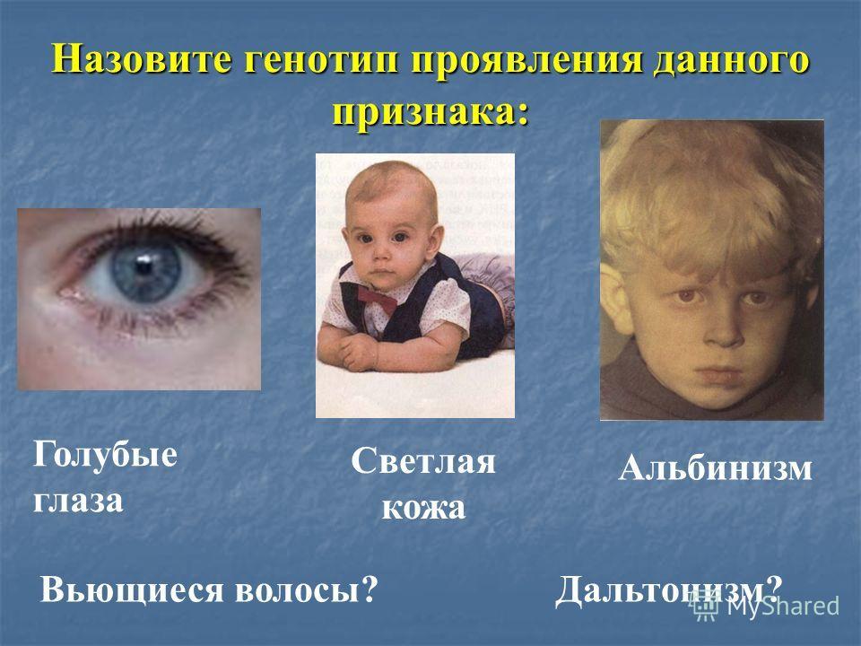 Назовите генотип проявления данного признака: Голубые глаза Светлая кожа Альбинизм Вьющиеся волосы? Дальтонизм?