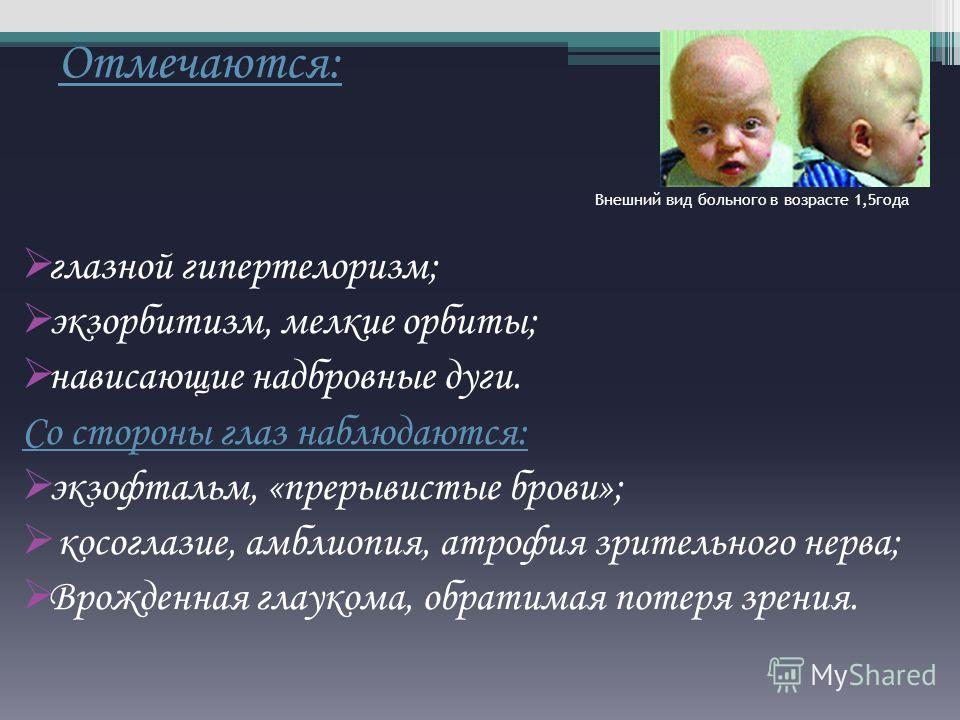 Отмечаются: Внешний вид больного в возрасте 1,5года глазной гипертелоризм; экзорбитизм, мелкие орбиты; нависающие надбровные дуги. Со стороны глаз наблюдаются: экзофтальм, «прерывистые брови»; косоглазие, амблиопия, атрофия зрительного нерва; Врожден