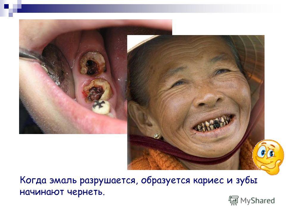 Ухаживайте за своими зубами ежедневно, ешьте полезные продукты, посещайте стоматолога раз в пол года и тогда ваши зубки будут крепкими, а улыбка белоснежной))