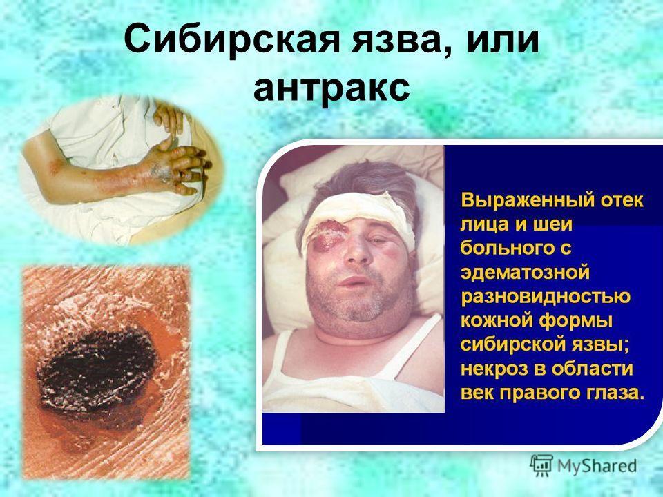 Сибирская язва, или антракс